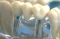 Стоматологические услуги,  имплантация зубов !!!
